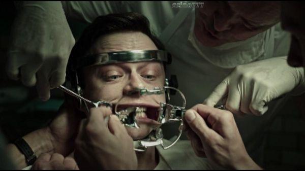 Вырывают зубы