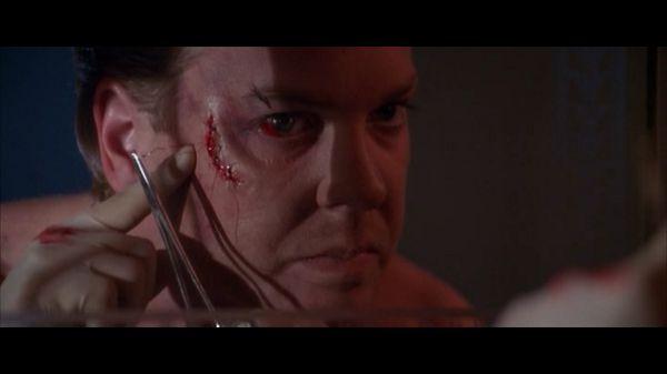 Нельсон зашивает рану
